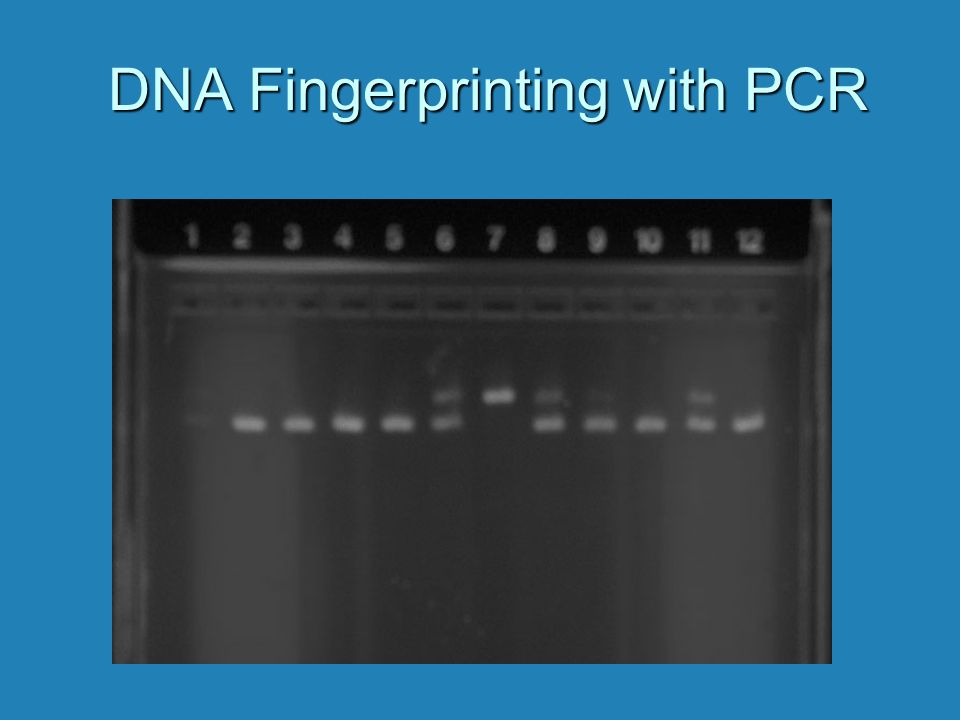 DNA Fingerprinting with PCR