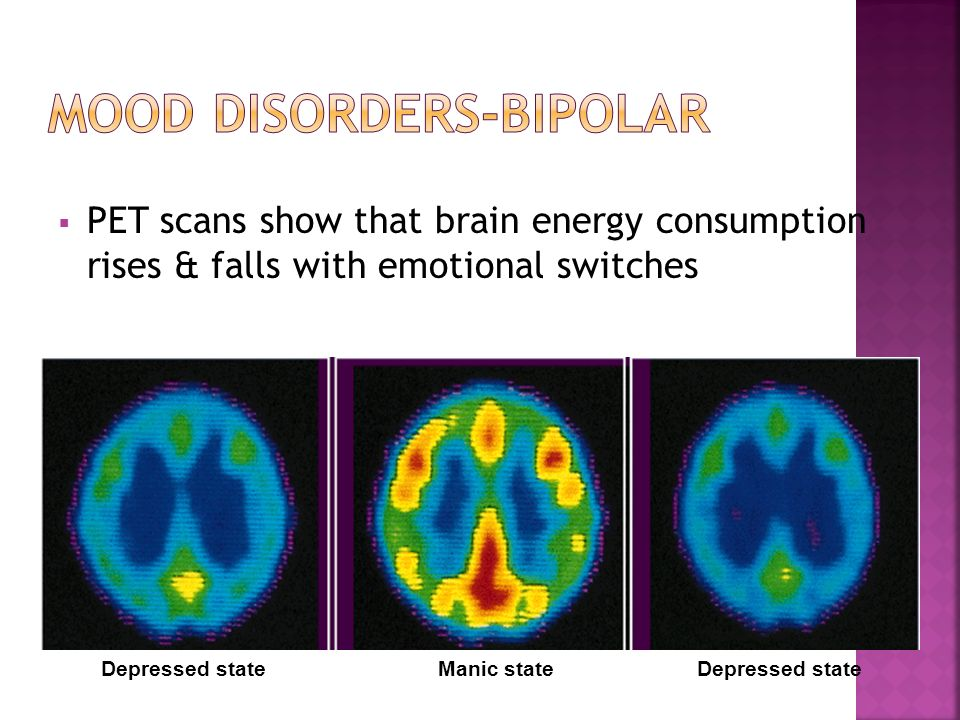  PET scans show that brain energy consumption rises & falls with emotional switches Depressed stateManic stateDepressed state