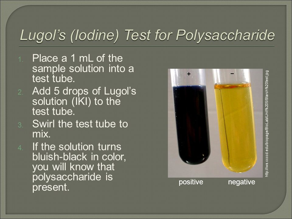 Biology Ms  Haut  1  Add 1 ml (10 drops) of Benedict's solution to