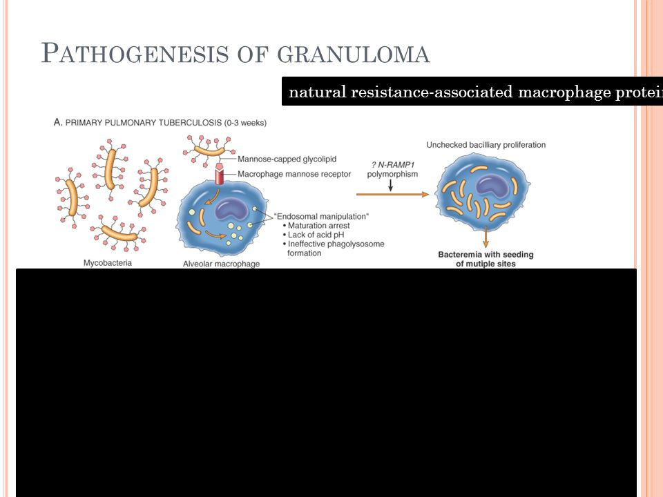 P ATHOGENESIS OF GRANULOMA natural resistance-associated macrophage protein 1