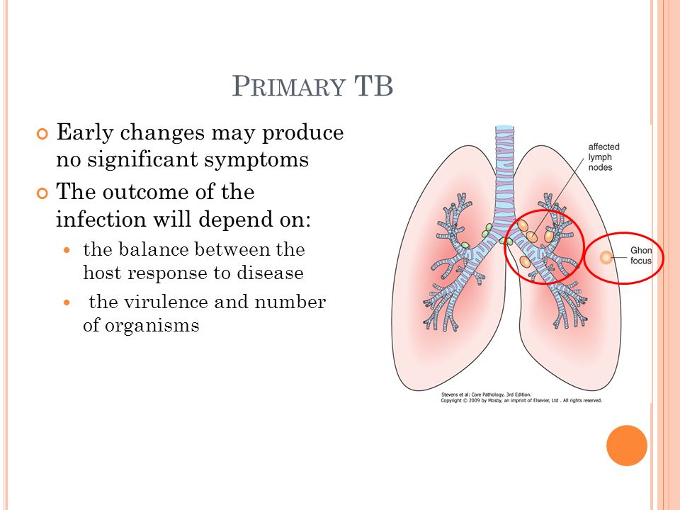 P RIMARY TB Early changes may produce no significant symptoms The outcome of the infection will depend on: the balance between the host response to disease the virulence and number of organisms