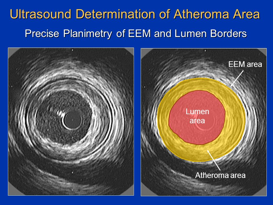 Ultrasound Determination of Atheroma Area Precise Planimetry of EEM and Lumen Borders Atheroma area Lumen area EEM area