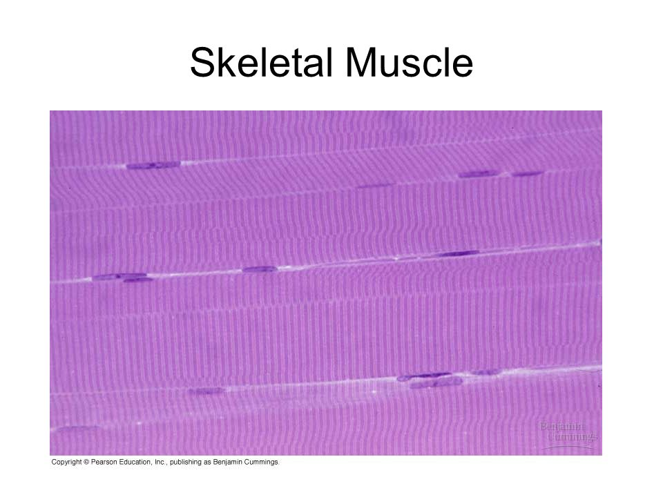 Muscle Tissue. Three Types of Muscle Tissue Skeletal or Striated ...