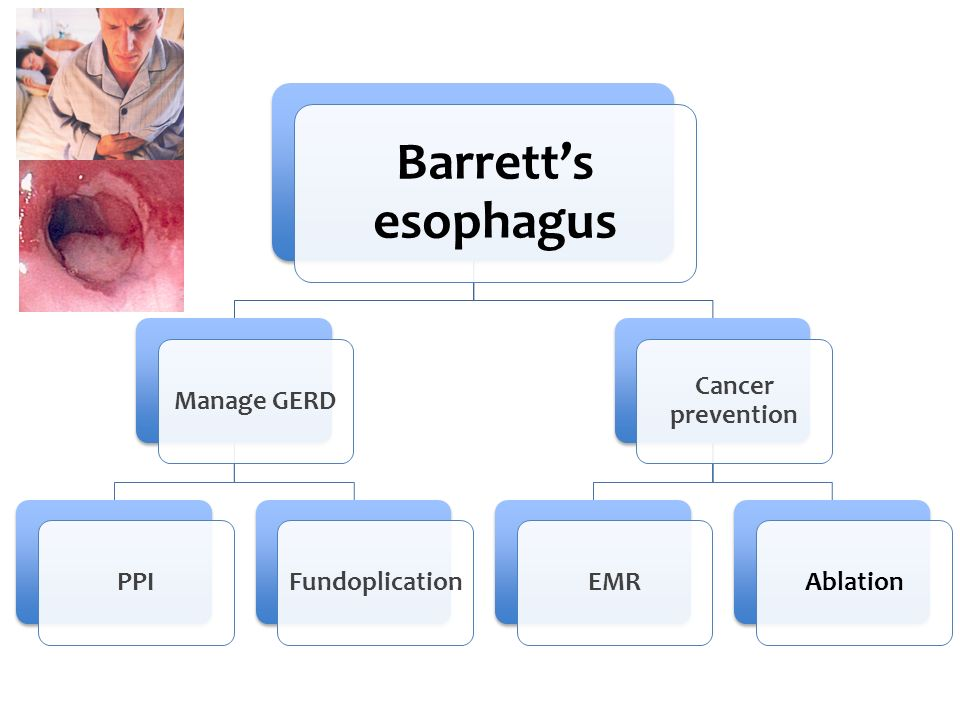 Best Treatment for Barrett's esophagus is Medical George