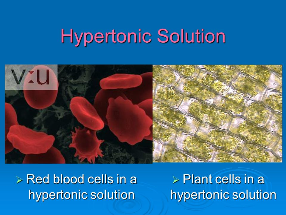Hypertonic Solution  Red blood cells in a hypertonic solution  Plant cells in a hypertonic solution