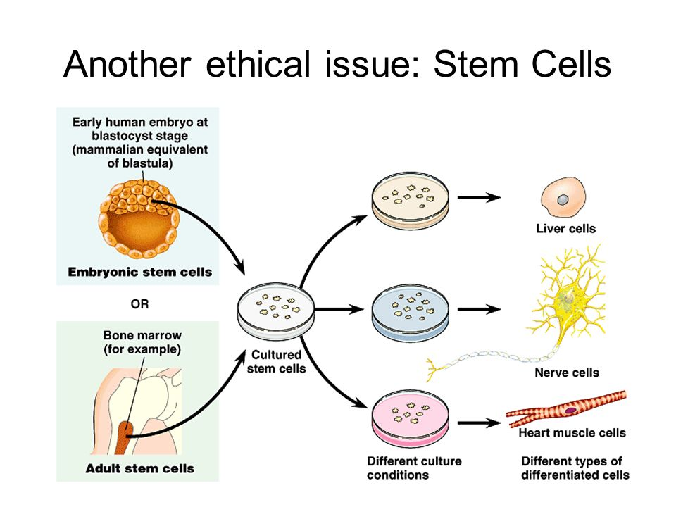 Another ethical issue: Stem Cells