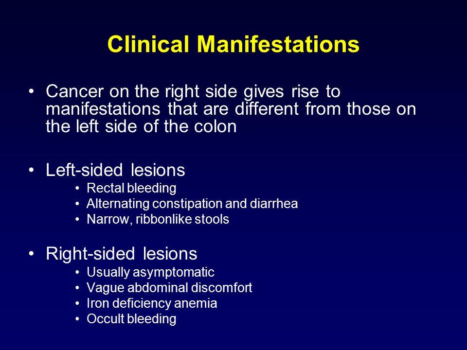 Colorectal Cancer Ozlem Uysal Sonmez Md Yeditepe University Hospital Department Of Medical Oncology Ppt Download
