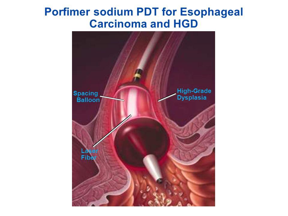 Current Status of PDT in Gastroenterology 2015: Esophageal