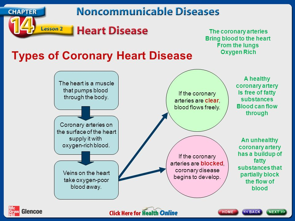 Types Of Coronary Heart Disease The Is A Muscle That Pumps Blood Through Body
