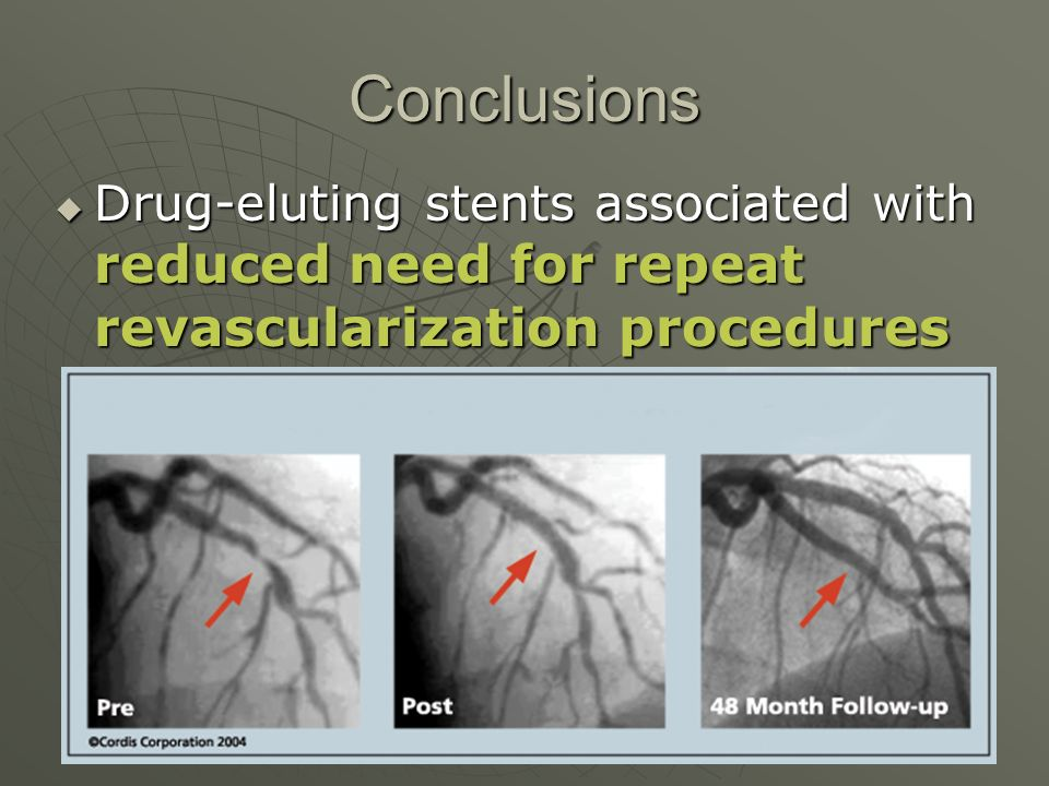 Conclusions  Drug-eluting stents associated with reduced need for repeat revascularization procedures