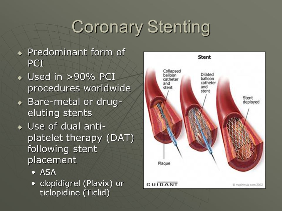 Coronary Stenting  Predominant form of PCI  Used in >90% PCI procedures worldwide  Bare-metal or drug- eluting stents  Use of dual anti- platelet therapy (DAT) following stent placement ASAASA clopidigrel (Plavix) or ticlopidine (Ticlid)clopidigrel (Plavix) or ticlopidine (Ticlid)