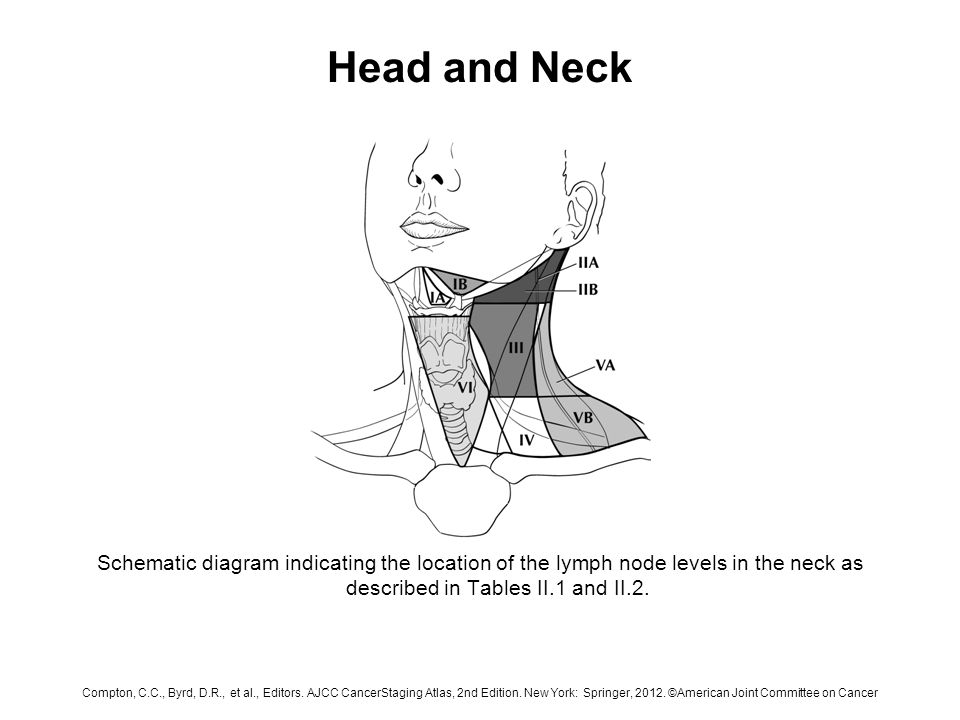 Lymph Nodes In Neck Diagram | Head And Neck Schematic Diagram Indicating The Location Of The Lymph