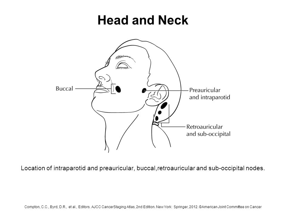 Head And Neck Schematic Diagram Indicating The Location Of The Lymph