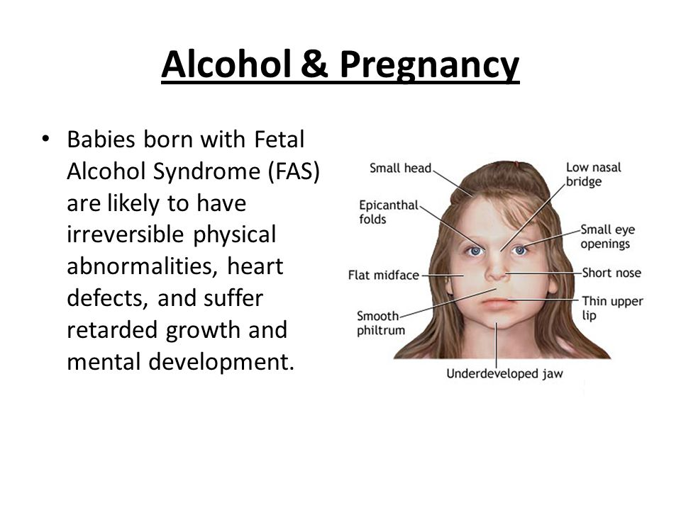 Alcohol & Pregnancy Babies born with Fetal Alcohol Syndrome (FAS) are likely to have irreversible physical abnormalities, heart defects, and suffer retarded growth and mental development.