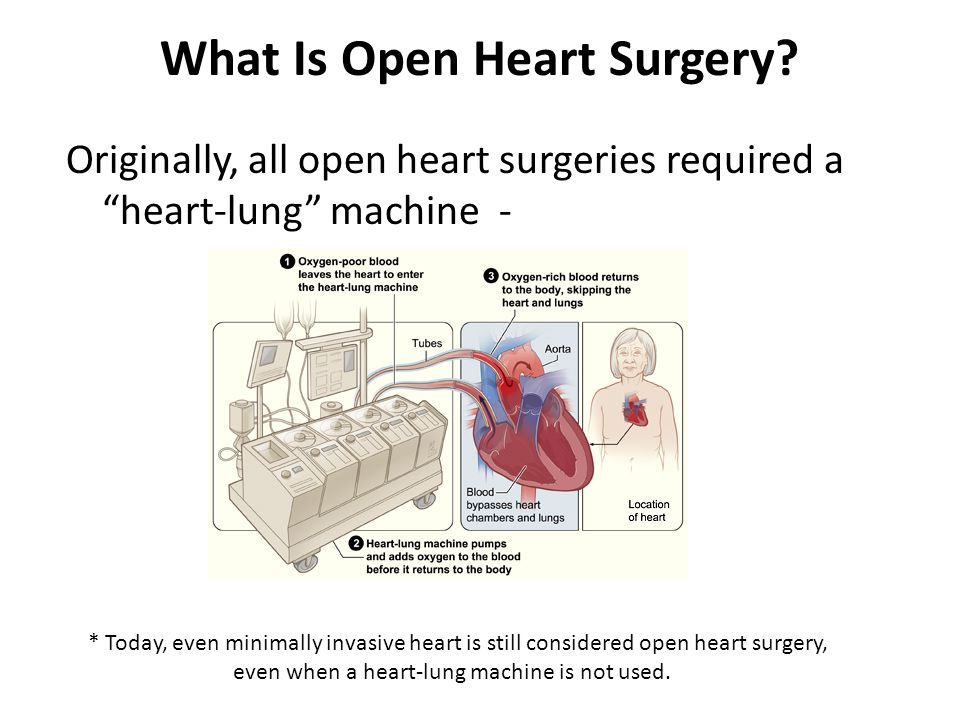 Open heart surgery patient information dr donald l bricker md and what is open heart surgery ccuart Images