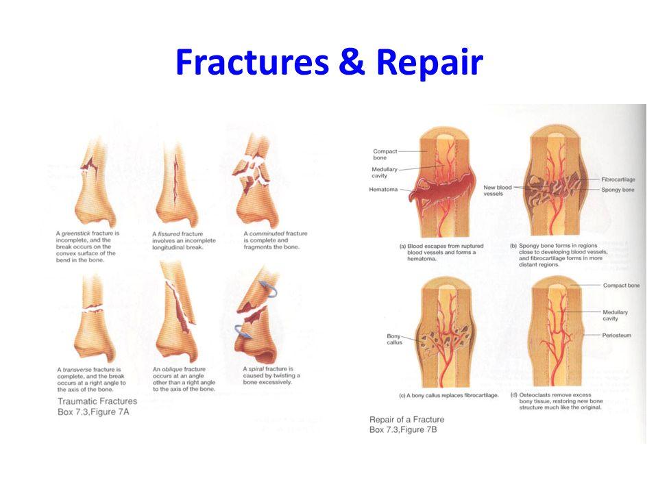 Fractures & Repair. Male vs. Female Pelvis Female Structure (All ...
