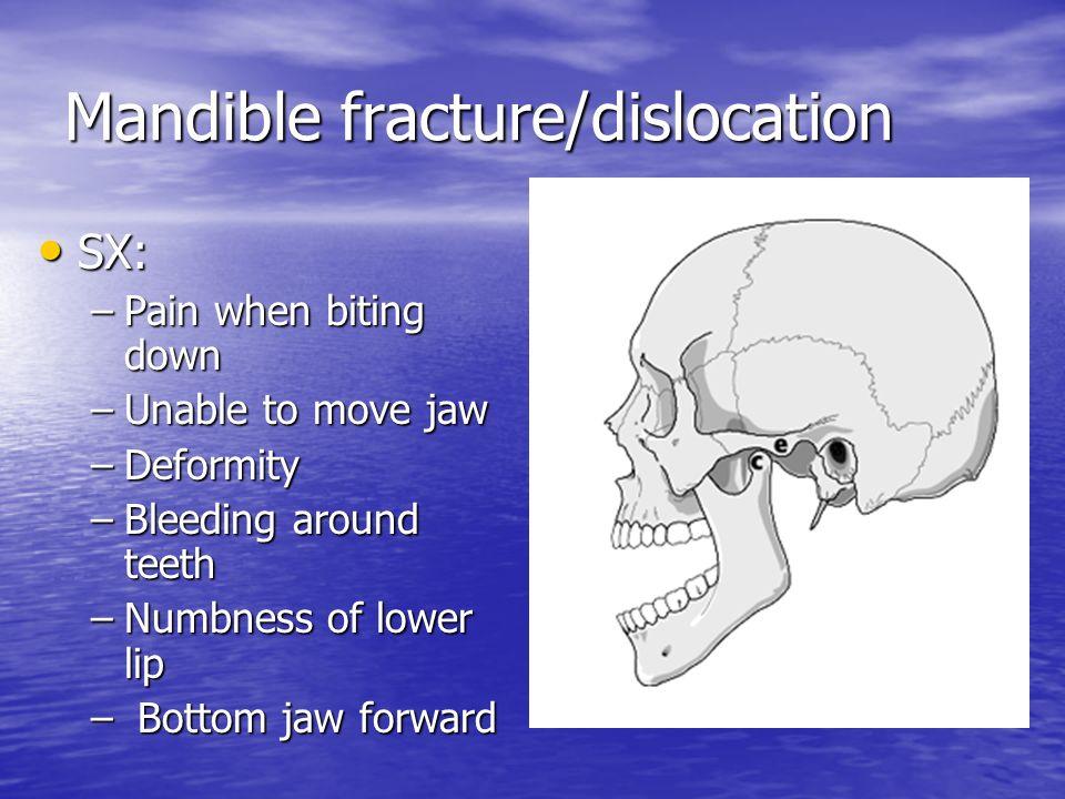 fractured skull pain