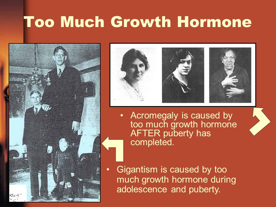 Too Much Growth Hormone Acromegaly is caused by too much growth hormone AFTER puberty has completed.