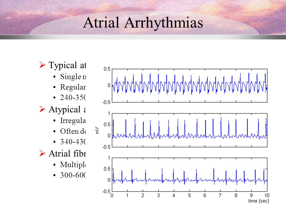 Nonlinear Analysis of Surface ECG Atrial Flutter and Atrial