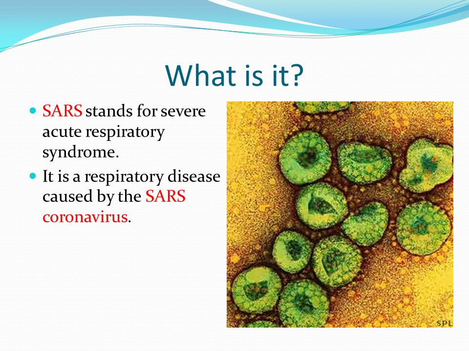 Image result for SARS disease