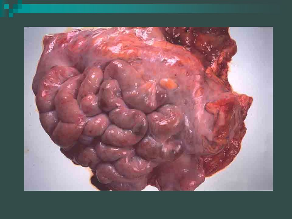 The Small Intestine When the food, in the form of chyme, leaves the stomach it enters the small intestine.