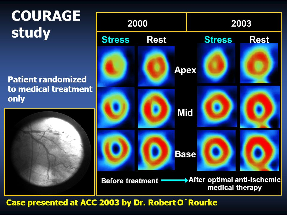 Rest Mid Base Apex StressRestStress After optimal anti-ischemic medical therapy Before treatment COURAGE study Patient randomized to medical treatment only Case presented at ACC 2003 by Dr.