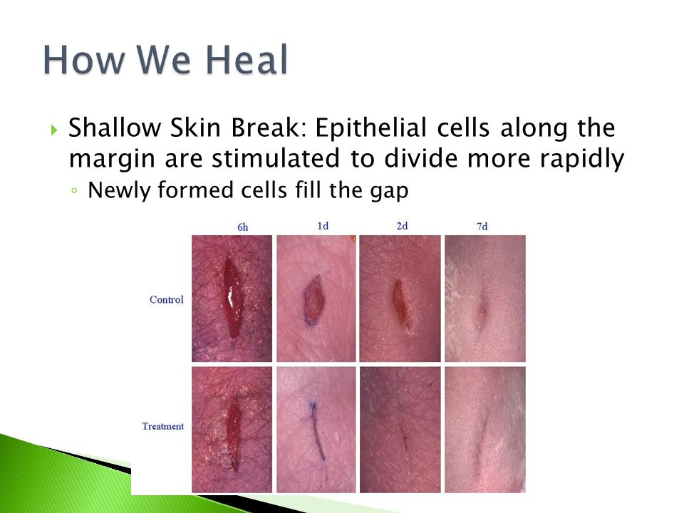  Shallow Skin Break: Epithelial cells along the margin are stimulated to divide more rapidly ◦ Newly formed cells fill the gap