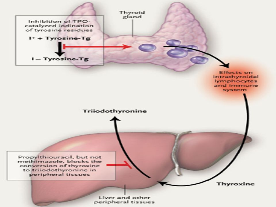 Graves Hyperthyroidism And Anti Thyroid Drugs By Ppt Download