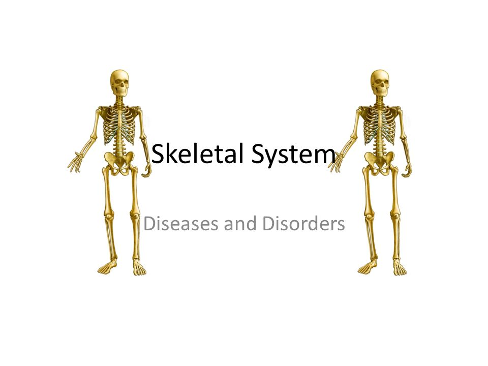 Skeletal System Diseases and Disorders. Spina Bifida The spinal cord ...