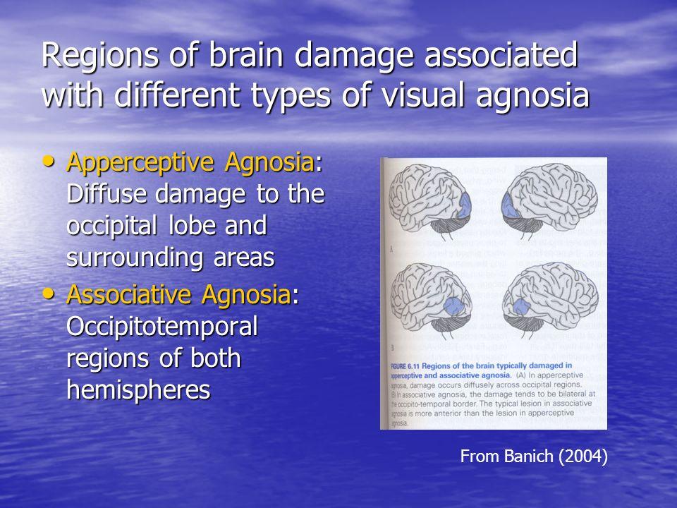 types of visual agnosia