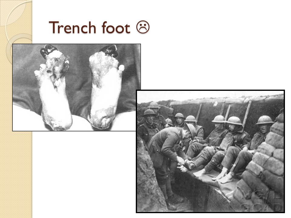 Trench foot 