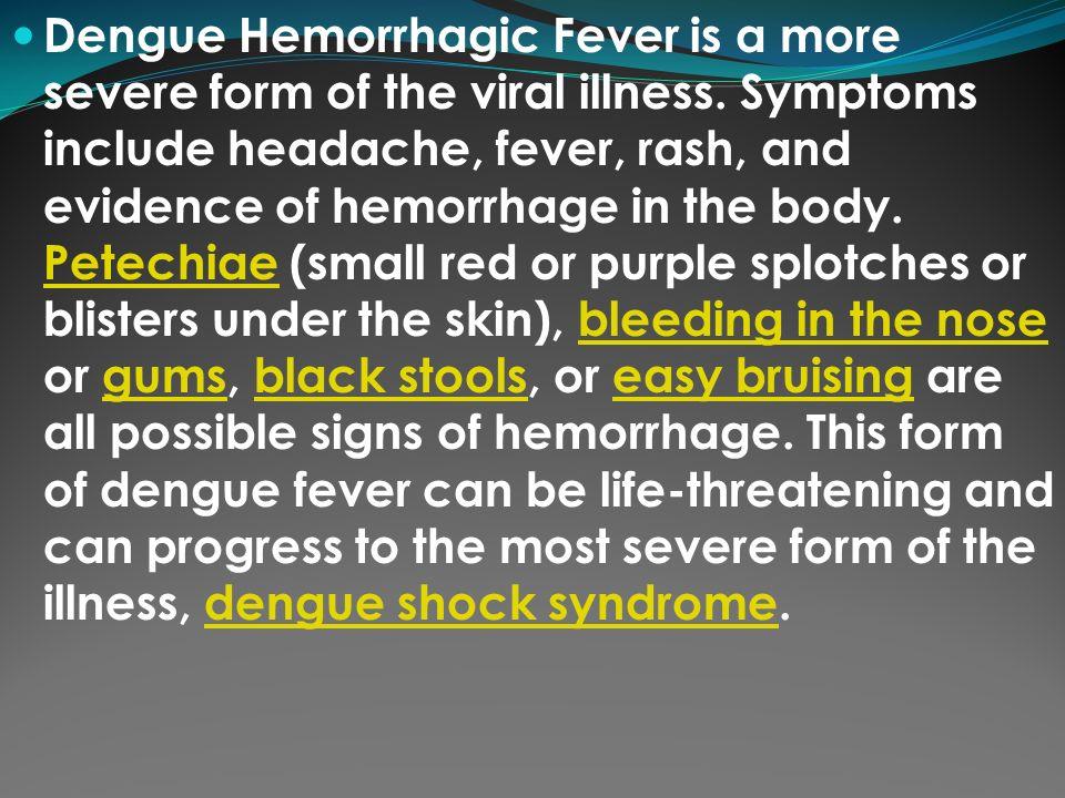 Pleasant Hhemorrhagic Dengue Ddengue Shock Syndrome Hh Ibusinesslaw Wood Chair Design Ideas Ibusinesslaworg