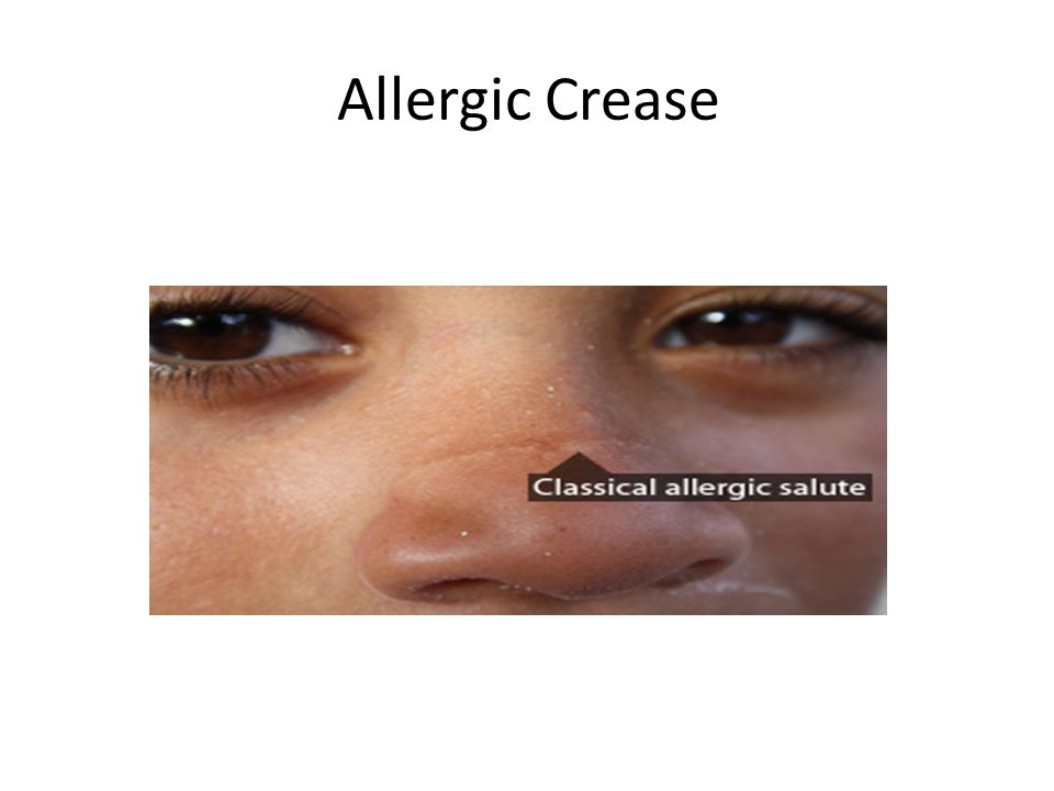 Rhinosinusitis Dr  Abdullah S  Al Yousef  Allergic Rhinitis