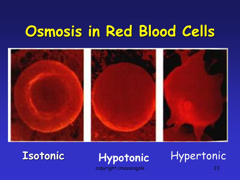 23 Osmosis in Red Blood Cells Isotonic Hypotonic Hypertonic copyright cmassengale
