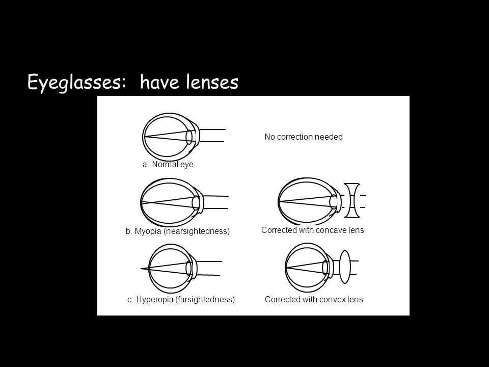 A concave lens is thinner in the middle than on the ends.