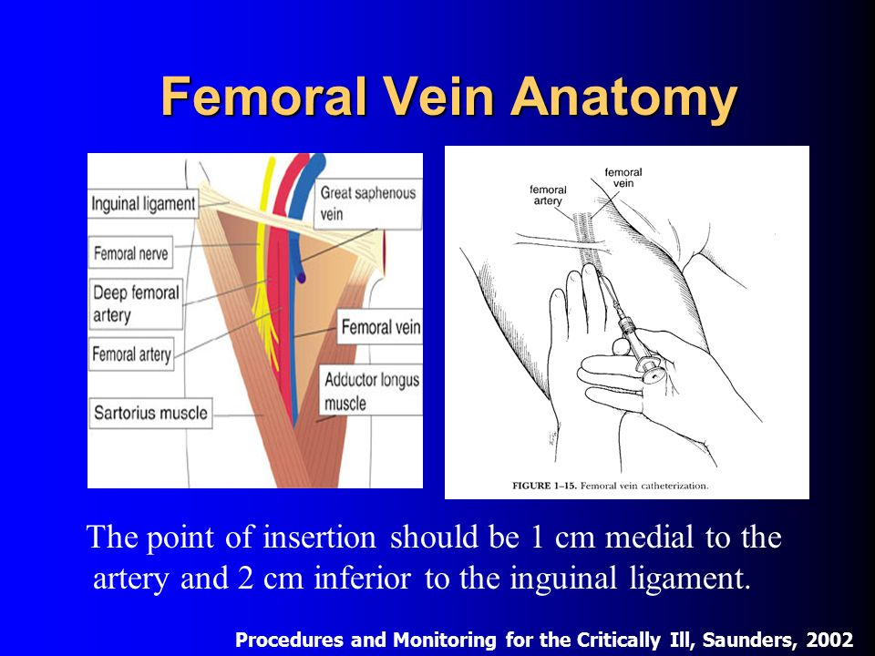 Central Venous Access Approach And Complications Ppt Download