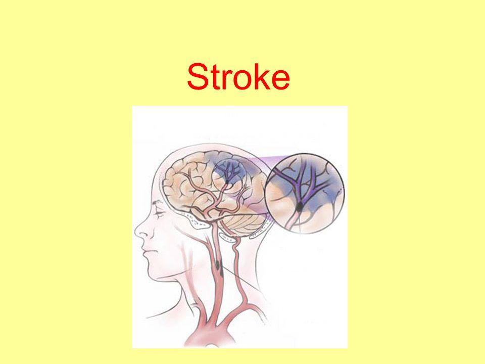 1 stroke stroke 2 definition cerebrovascular accident