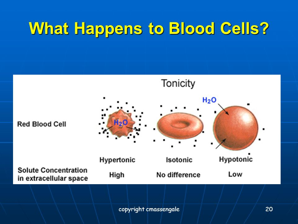 19 Osmosis in Red Blood Cells Isotonic Hypotonic Hypertonic copyright cmassengale