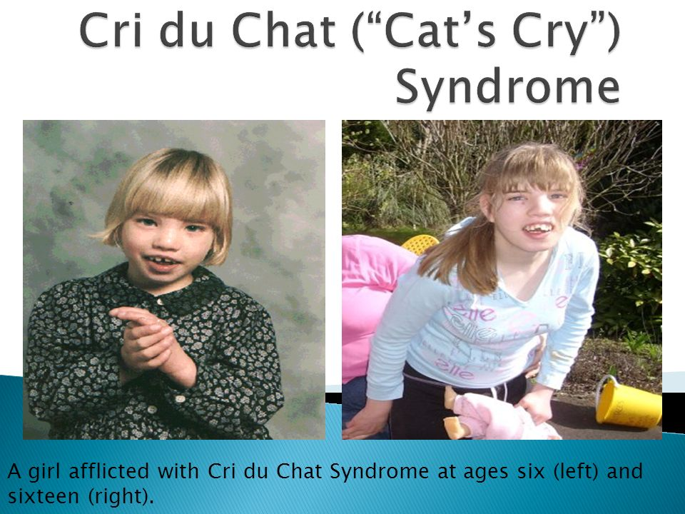 Cri du chat is more dominant in which sex