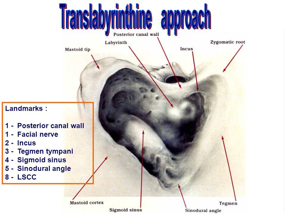 Zygomatic arch Mastoid tip Nose Feet Occiput Emissary vein Macewe ...