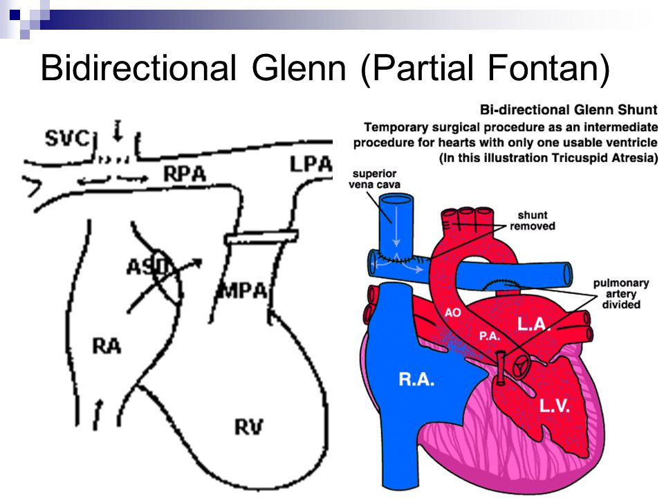 Fontan Procedure Ken Jusko Do Case 39 Yo Female With H O Tricuspid Atresia And A Fib And Prior Fontan No Prior Studies Available For Comparison Ppt Download