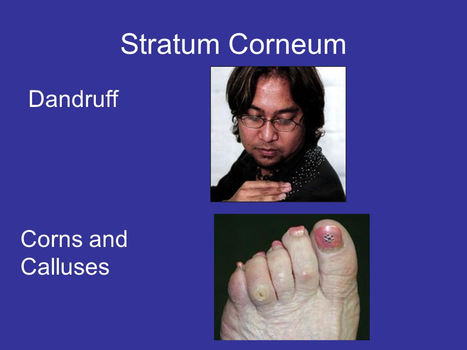 Stratum Corneum Dandruff Corns and Calluses