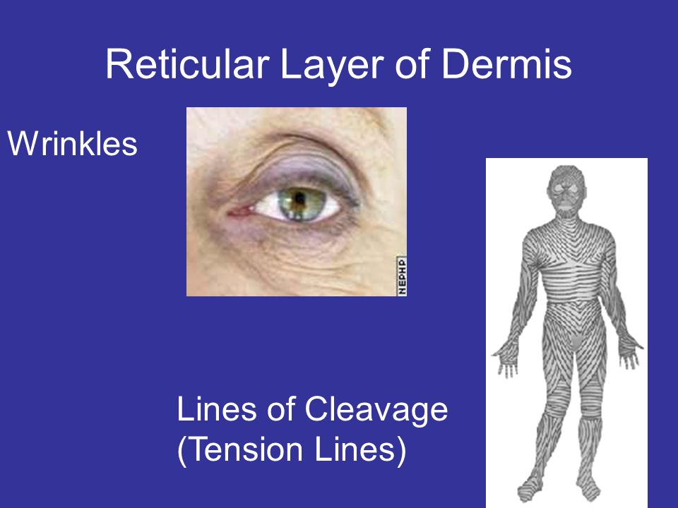 Reticular Layer of Dermis Wrinkles Lines of Cleavage (Tension Lines)