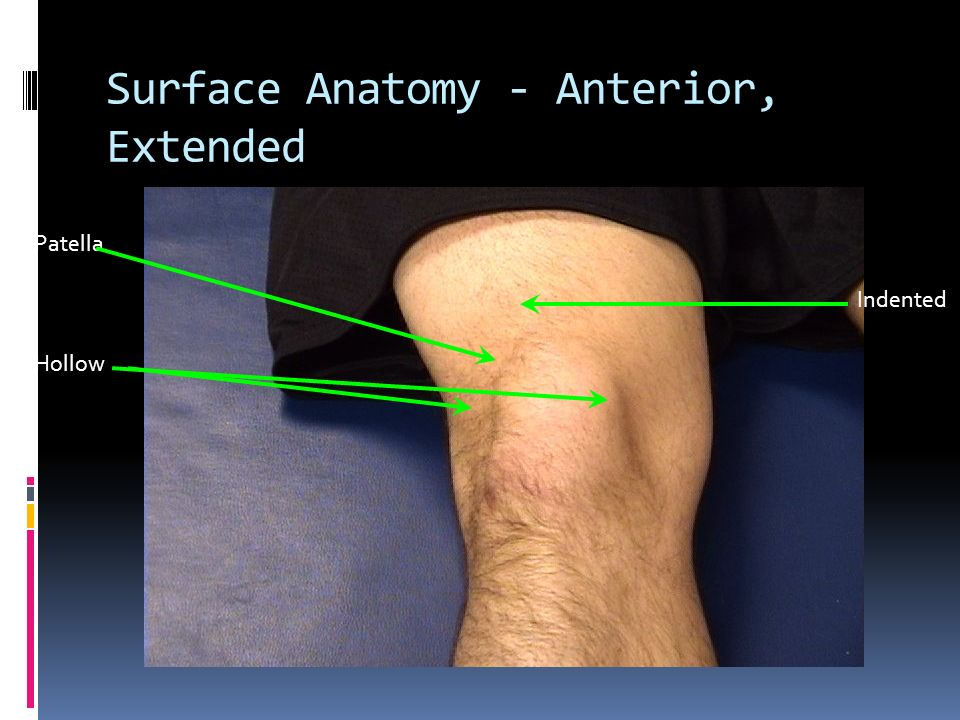 Historical Clues to Knee Injury Diagnoses Noncontact injury