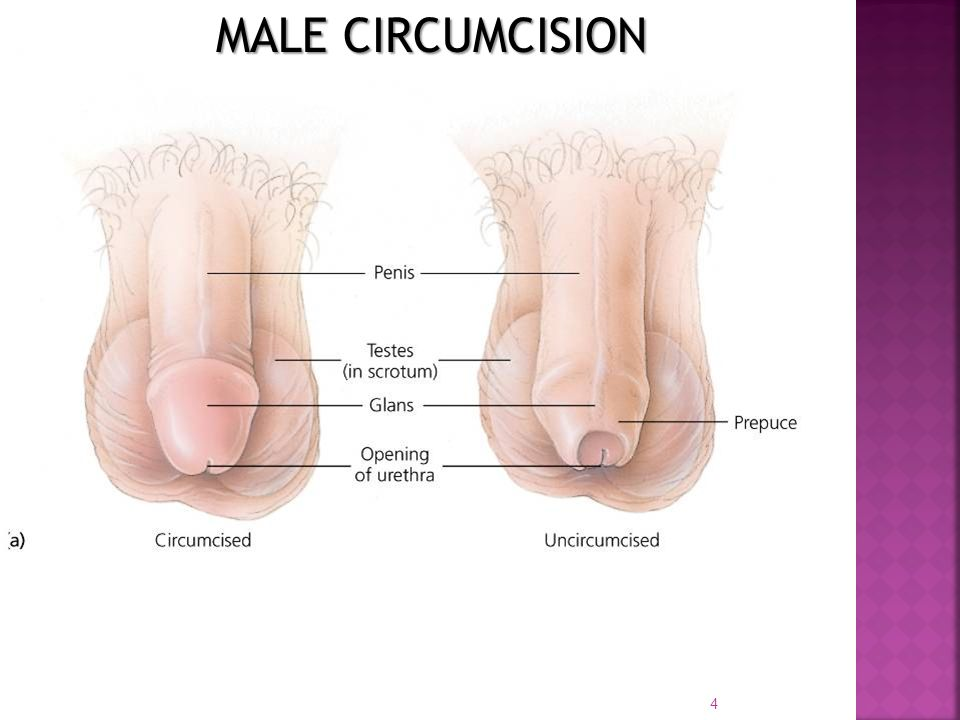 Male circumcision and sex