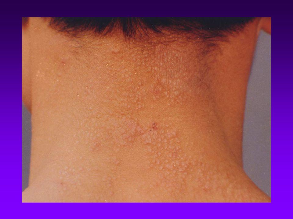 Neurodermatitis. Definition Definition A common,chronic skin disease ...