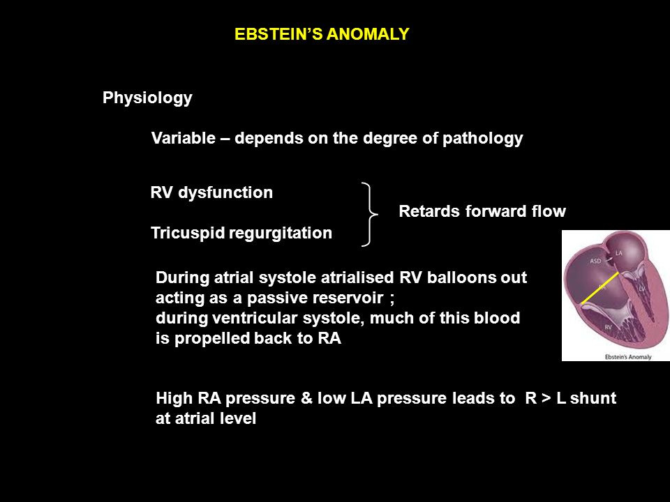 EBSTEIN'S ANOMALY Physiology RV dysfunction Tricuspid regurgitation Retards forward flow During atrial systole atrialised RV balloons out acting as a passive reservoir ; during ventricular systole, much of this blood is propelled back to RA Variable – depends on the degree of pathology High RA pressure & low LA pressure leads to R > L shunt at atrial level
