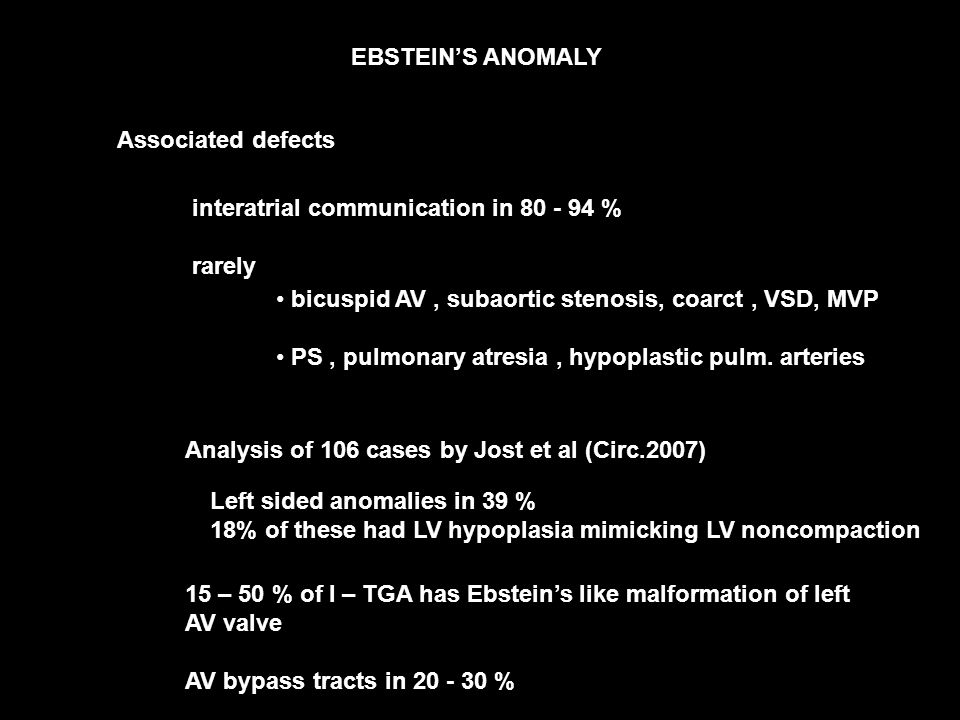 EBSTEIN'S ANOMALY Associated defects interatrial communication in % rarely bicuspid AV, subaortic stenosis, coarct, VSD, MVP PS, pulmonary atresia, hypoplastic pulm.