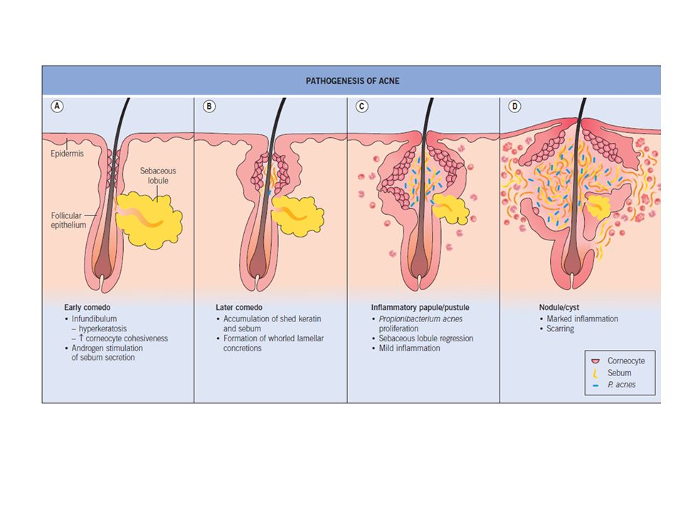 SEBACEOUS GLANDS DISORDERS(PART I) - ppt video online download