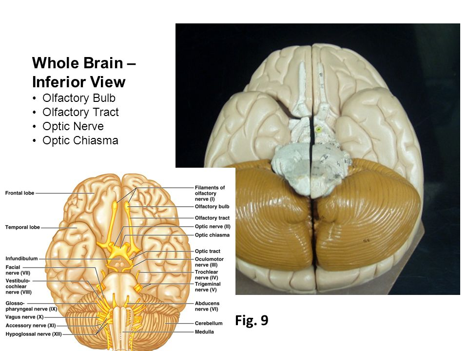 Gross Anatomy of the Brain and Cranial Nerves. Whole Brain Cerebrum ...